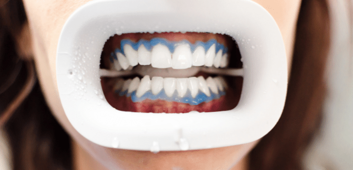 teeth whitening session gel washed off